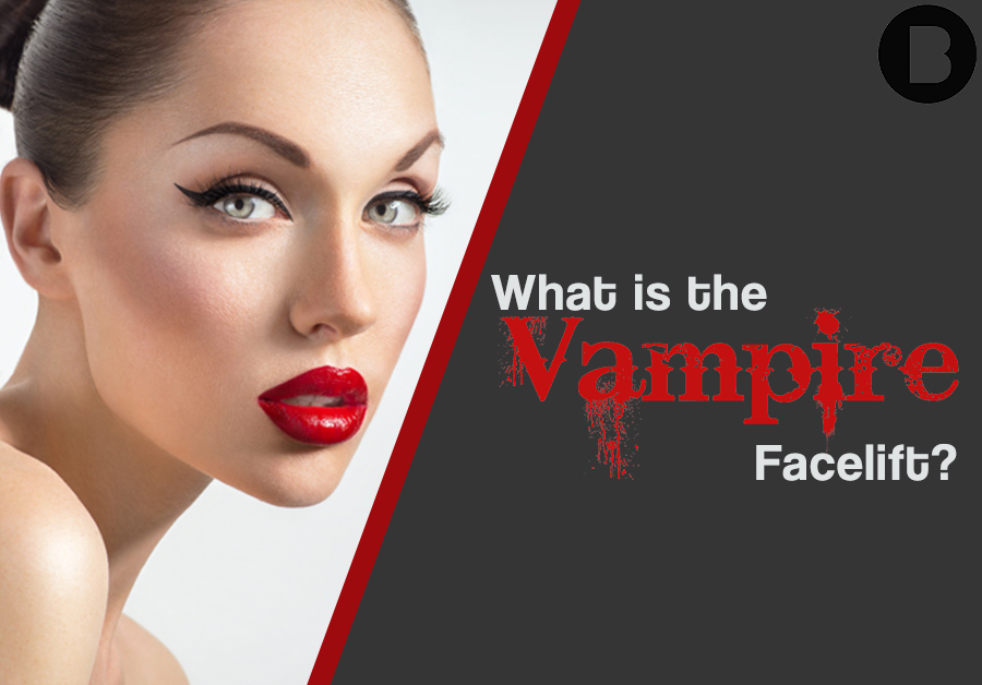 what is the vampire facelift