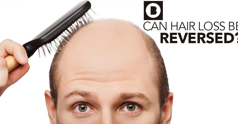can hair loss be reversed
