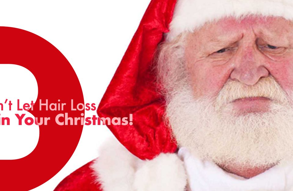 dont let hair loss ruin your christmas